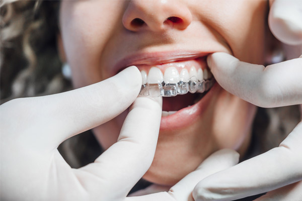 Get Invisalign in Warsaw IN from the best Invisalign provider