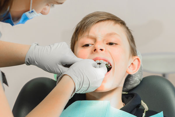 Learn more about orthodontic appliances