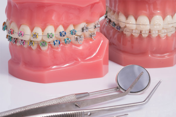 Discover the types of braces at Warsaw Orthodontics